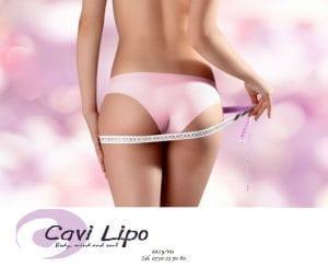 viktminskning med Cavi Lipo